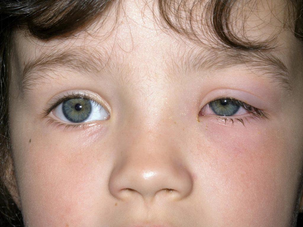 Swollen Eyelid Treatment Fast