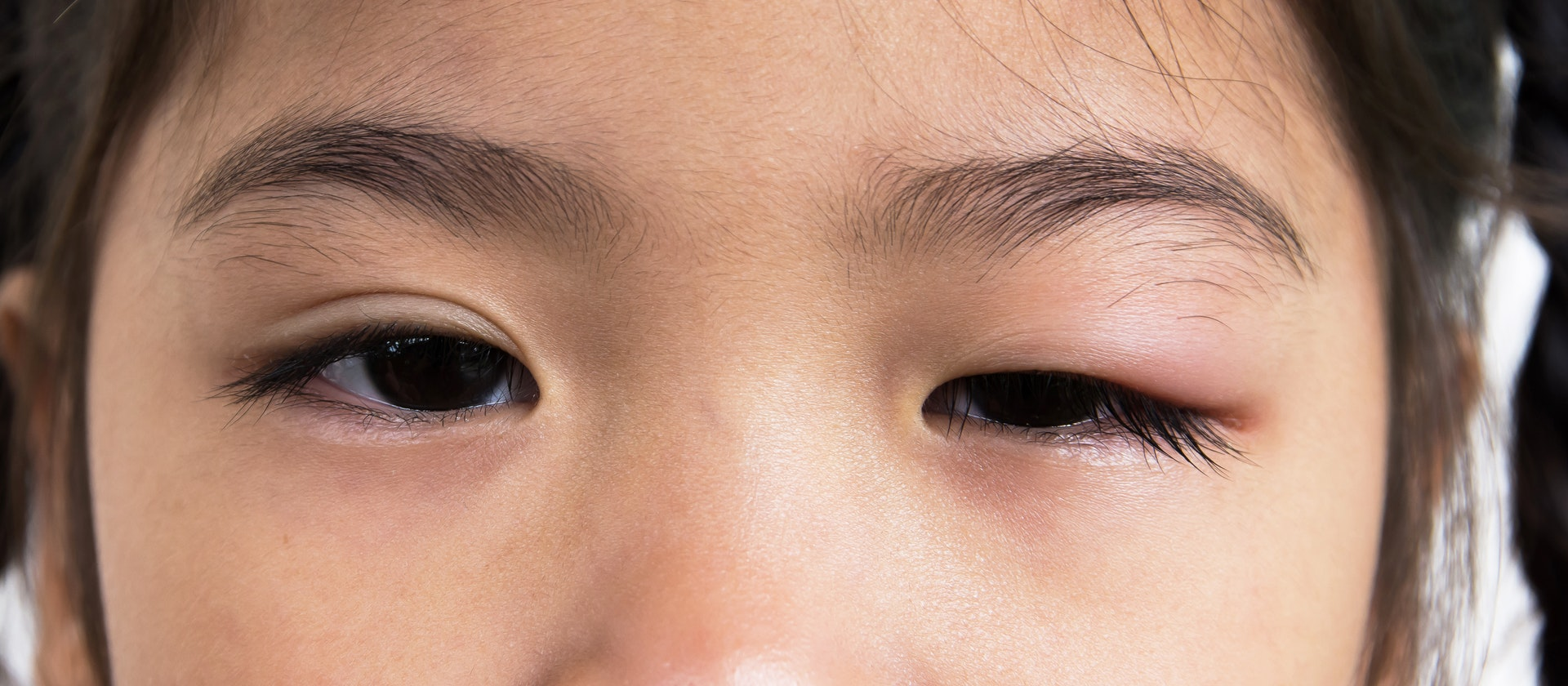 Swollen Upper Eyelids