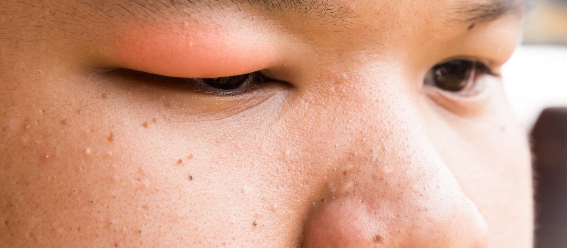 swollen_eyelid